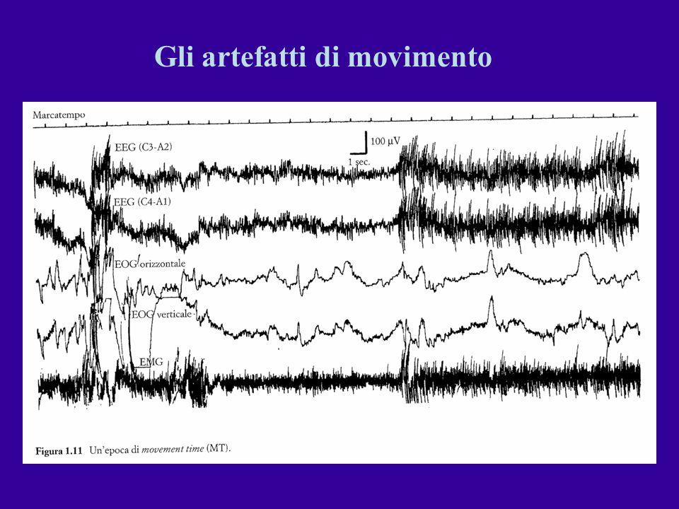 ACTIGRAFIA (1) Tecnica di registrazione del movimento basata sullapplicazione di un sensore piezoelettrico (actigrafo) su taluni segmenti corporei di cui vengono registrate le escursioni.