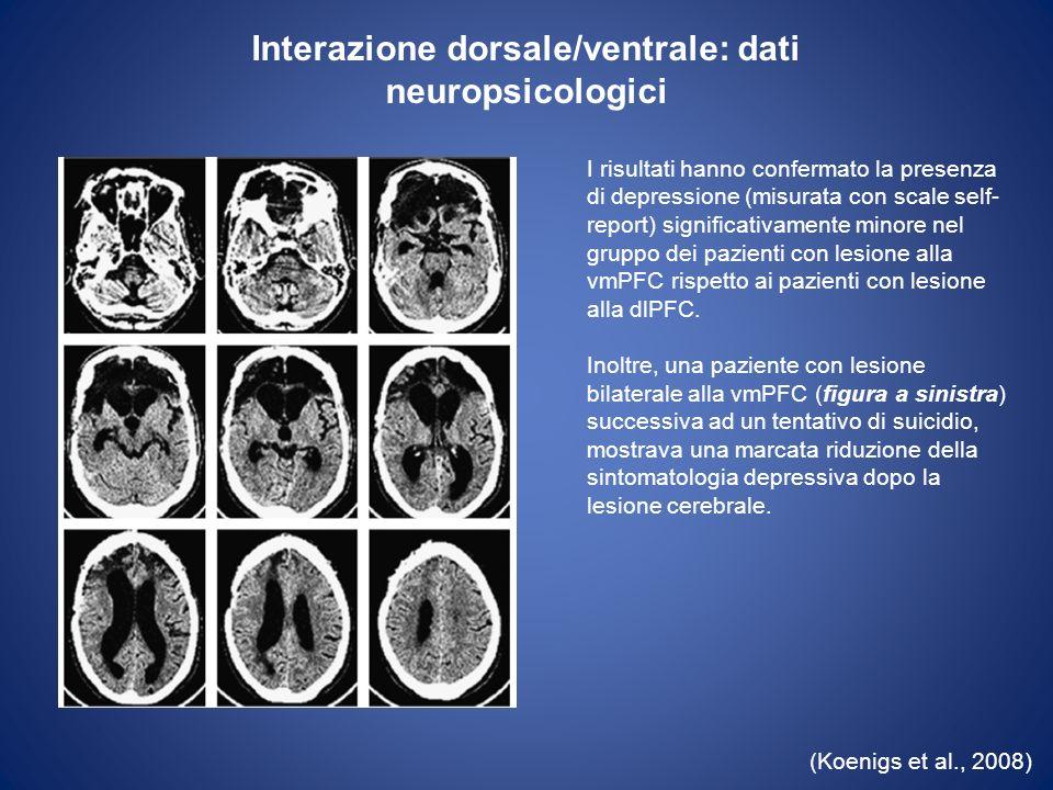 Interazione dorsale/ventrale: dati di stimolazione cerebrale profonda (I) (Mayberg et al., 2005) Stimolazione cerebrale profonda mediante elettrodi localizzati nella regione prefrontale ventromediale in corrispondenza del cingolo subgenuale.