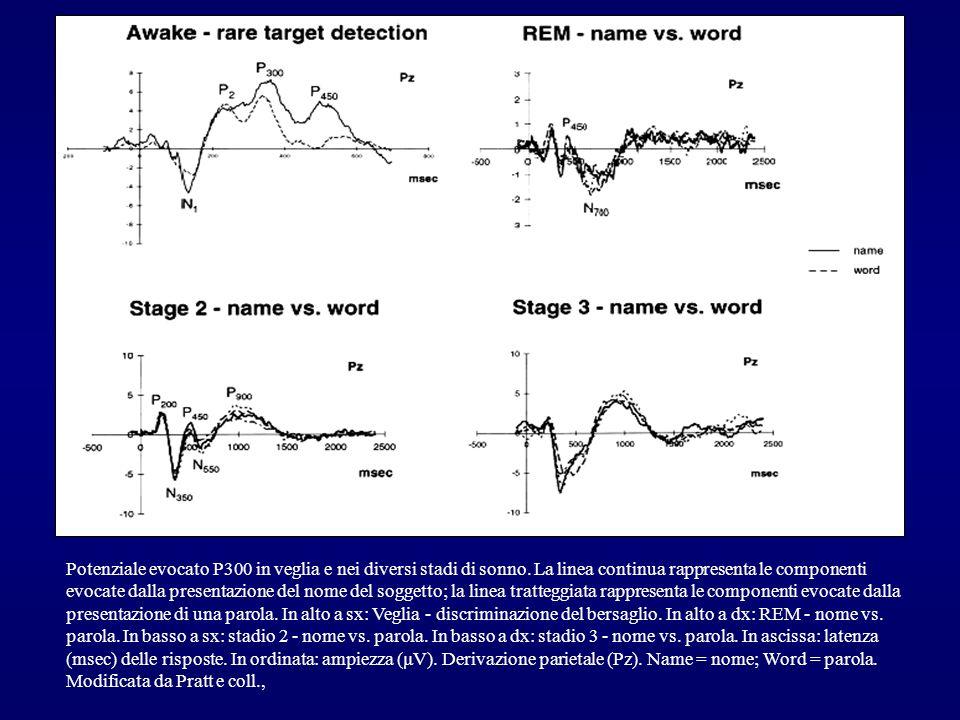Potenziale evocato P300 in veglia e nei diversi stadi di sonno. La linea continua rappresenta le componenti evocate dalla presentazione del nome del s