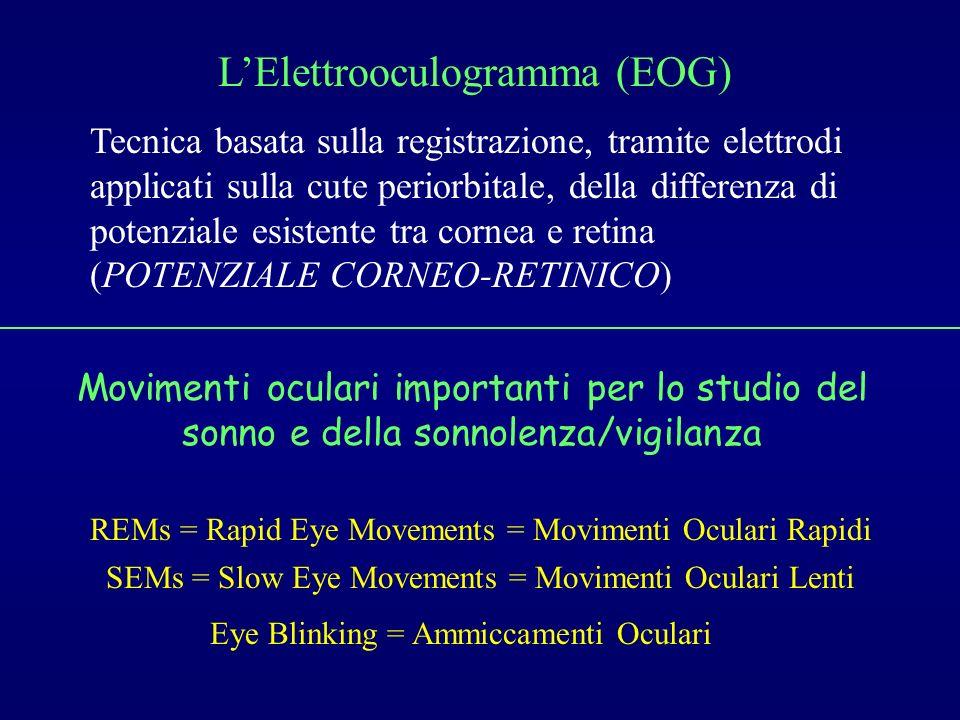 LElettrooculogramma (EOG) Tecnica basata sulla registrazione, tramite elettrodi applicati sulla cute periorbitale, della differenza di potenziale esis