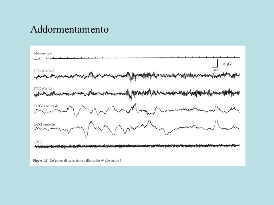 Sonno NREM Sonno REM EEG Grande ampiezzaBassa ampiezza onde lente ~ 1 Hz(ritmo theta ippocampale) TONO MUSCOLARE Ridotto Atonia completa (muscoli antigravitari del collo e del tronco) RIFLESSI SPINALI Lieve riduzioneNotevole inibizione discendente dei motoneuroni EVENTI FASICI Scossette muscolariMovimenti oculari rapidi (REM) Onde PGO Confronto fra stati di sonno delle variabili fisiologiche (1)