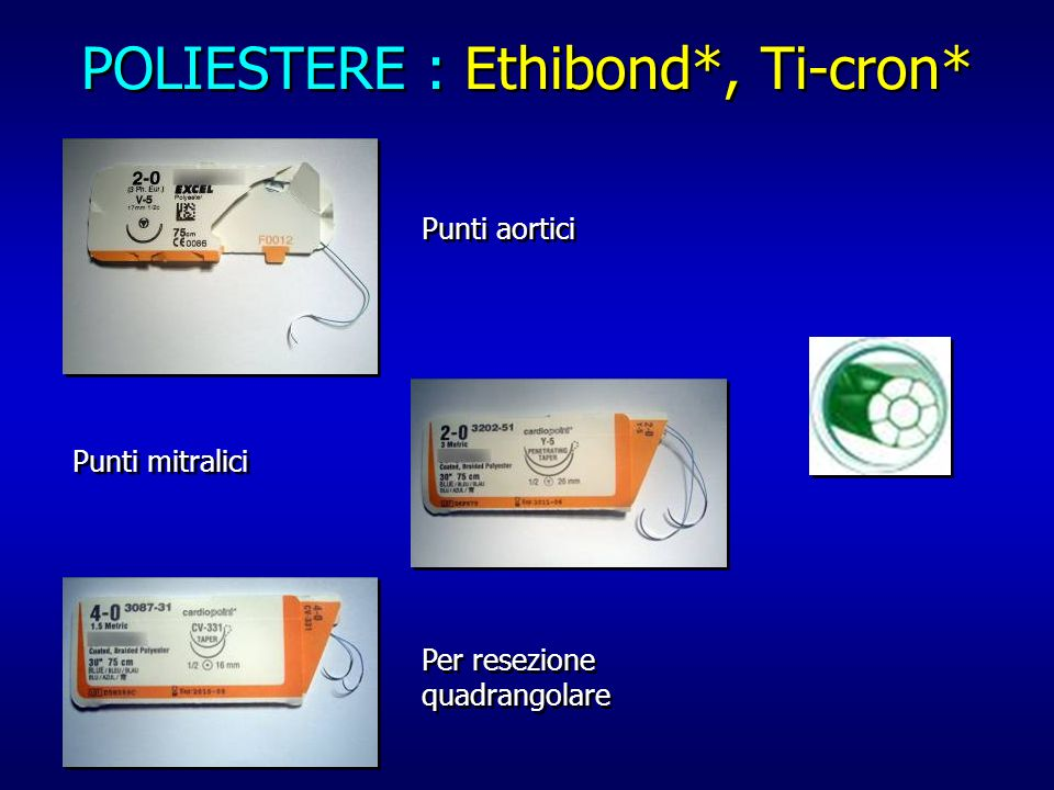 POLIESTERE : Ethibond*, Ti-cron* Punti aortici Punti mitralici Per resezione quadrangolare