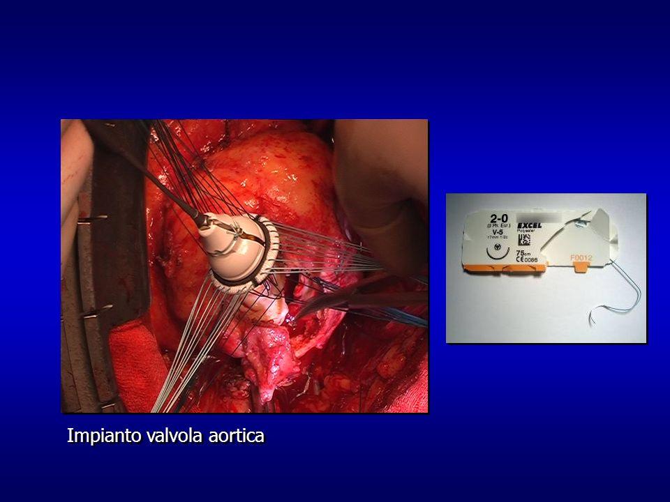 Impianto valvola aortica