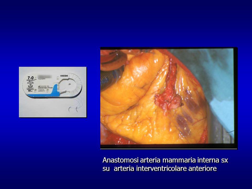 Anastomosi arteria mammaria interna sx su arteria interventricolare anteriore