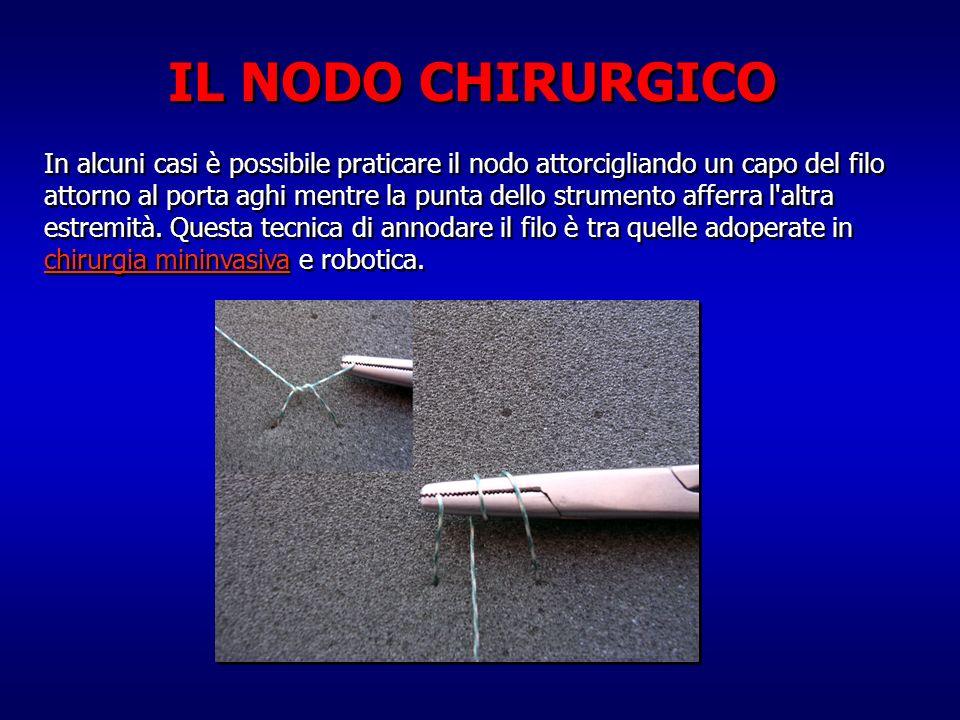 In alcuni casi è possibile praticare il nodo attorcigliando un capo del filo attorno al porta aghi mentre la punta dello strumento afferra l'altra est