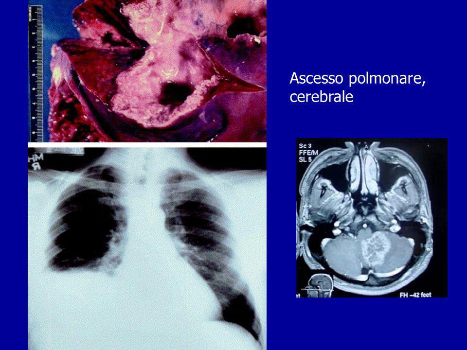 Ascesso polmonare, cerebrale