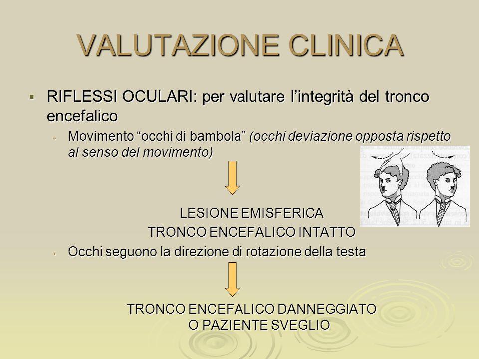 VALUTAZIONE CLINICA RIFLESSI OCULARI: per valutare lintegrità del tronco encefalico RIFLESSI OCULARI: per valutare lintegrità del tronco encefalico Mo