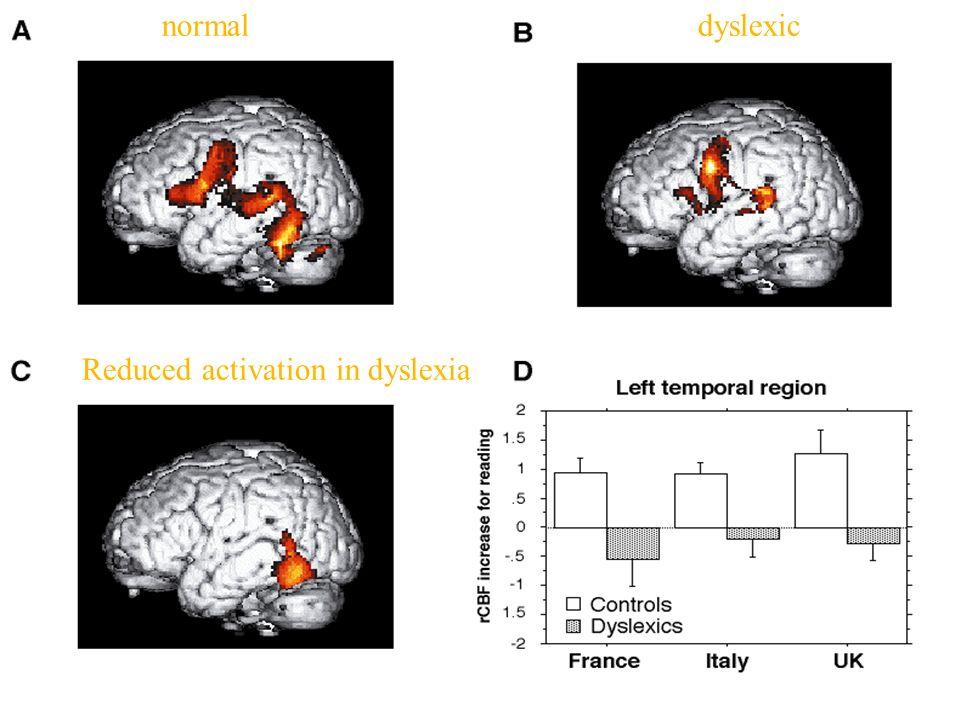 Reduced activation in dyslexia dyslexicnormal