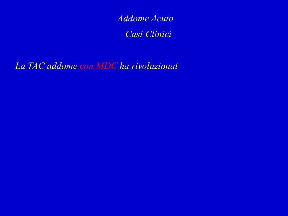Casi Clinici Addome Acuto La TAC addome con MDC ha rivoluzionat