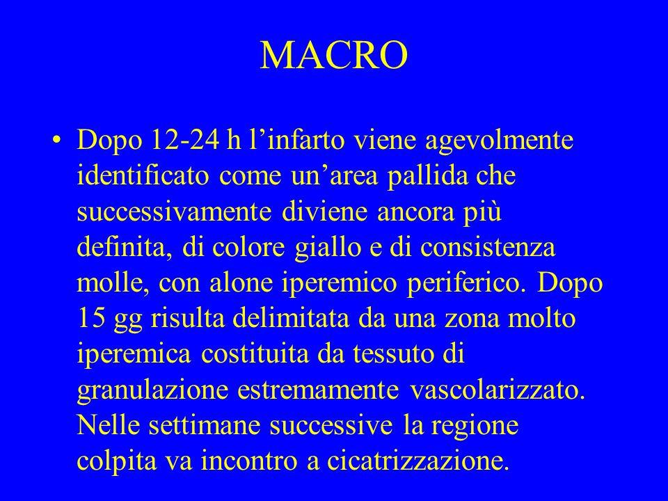 MACRO Dopo 12-24 h linfarto viene agevolmente identificato come unarea pallida che successivamente diviene ancora più definita, di colore giallo e di