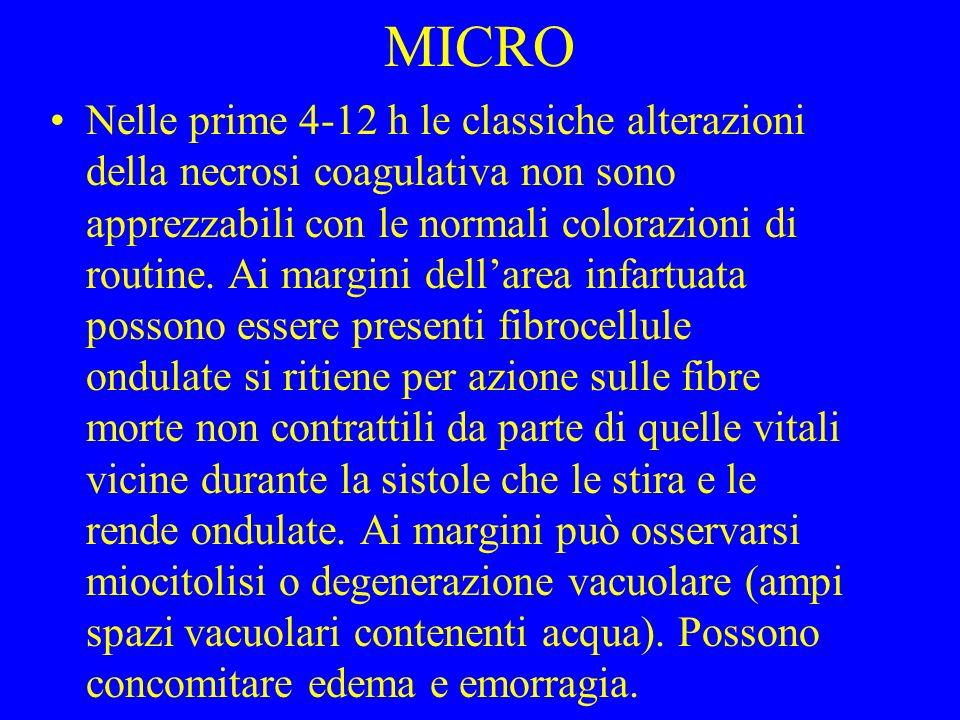 MICRO Nelle prime 4-12 h le classiche alterazioni della necrosi coagulativa non sono apprezzabili con le normali colorazioni di routine. Ai margini de