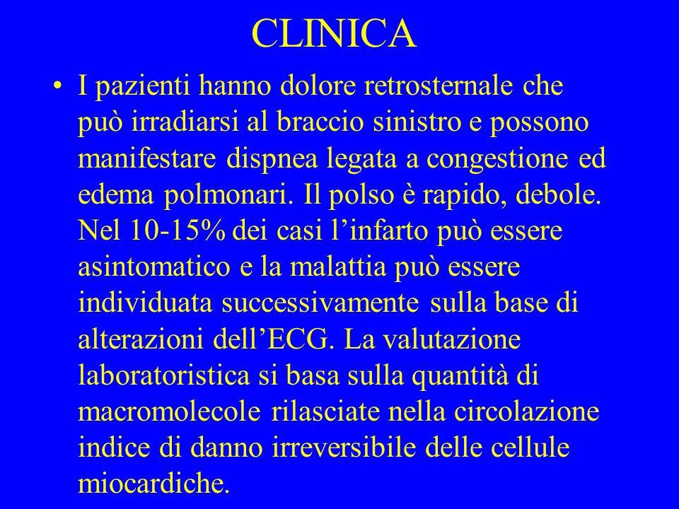 CLINICA I pazienti hanno dolore retrosternale che può irradiarsi al braccio sinistro e possono manifestare dispnea legata a congestione ed edema polmo