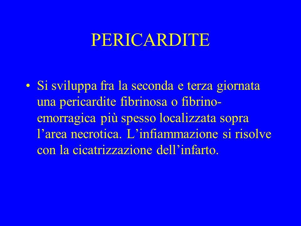 PERICARDITE Si sviluppa fra la seconda e terza giornata una pericardite fibrinosa o fibrino- emorragica più spesso localizzata sopra larea necrotica.