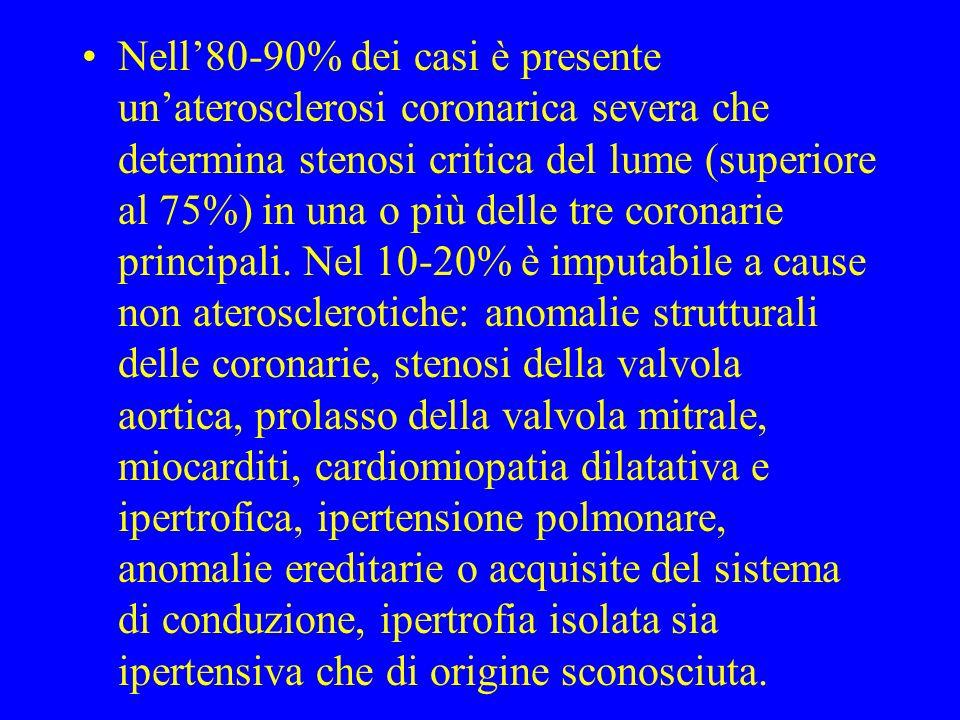 Nell80-90% dei casi è presente unaterosclerosi coronarica severa che determina stenosi critica del lume (superiore al 75%) in una o più delle tre coro