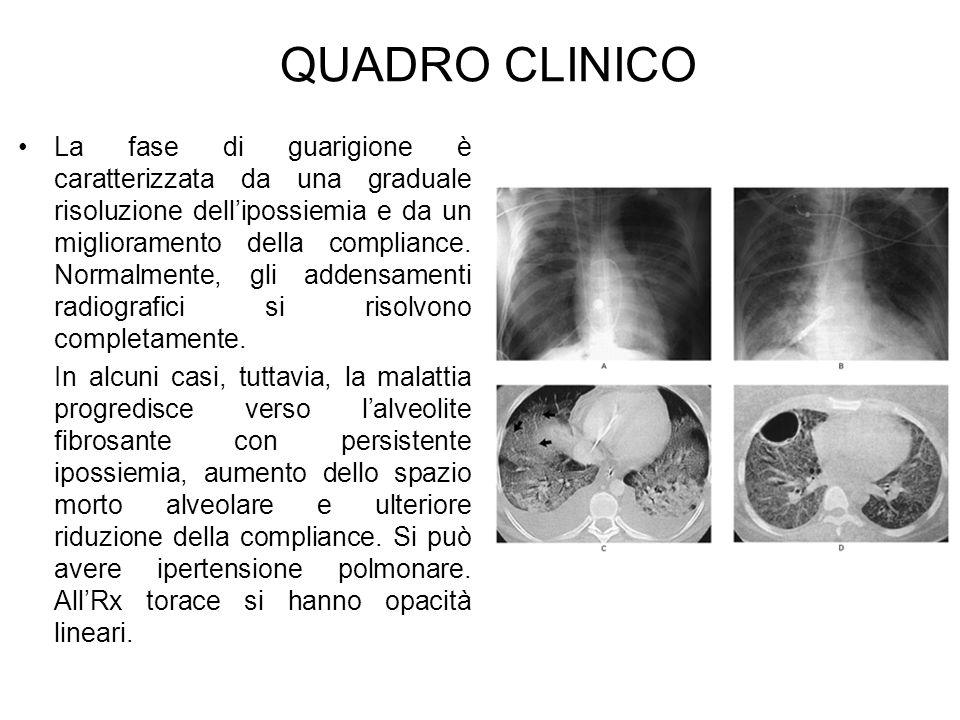 QUADRO CLINICO La fase di guarigione è caratterizzata da una graduale risoluzione dellipossiemia e da un miglioramento della compliance. Normalmente,