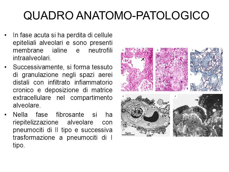 QUADRO ANATOMO-PATOLOGICO In fase acuta si ha perdita di cellule epiteliali alveolari e sono presenti membrane ialine e neutrofili intraalveolari. Suc
