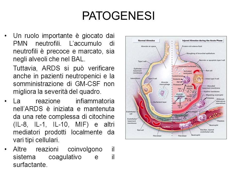 PATOGENESI Un ruolo importante è giocato dai PMN neutrofili. Laccumulo di neutrofili è precoce e marcato, sia negli alveoli che nel BAL. Tuttavia, ARD
