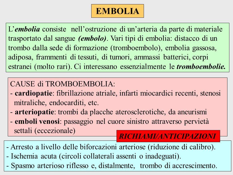 EMBOLIA CAUSE di TROMBOEMBOLIA: - cardiopatie: fibrillazione atriale, infarti miocardici recenti, stenosi mitraliche, endocarditi, etc. - arteriopatie