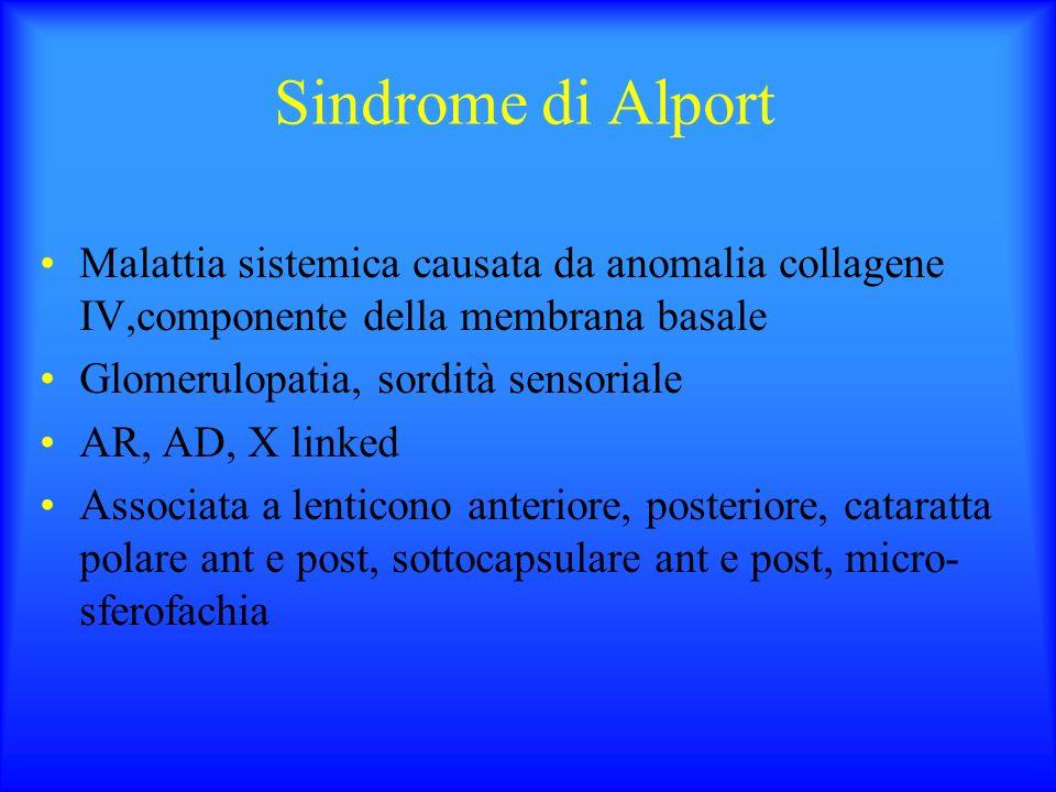 Sindrome di Alport Malattia sistemica causata da anomalia collagene IV,componente della membrana basale Glomerulopatia, sordità sensoriale AR, AD, X l