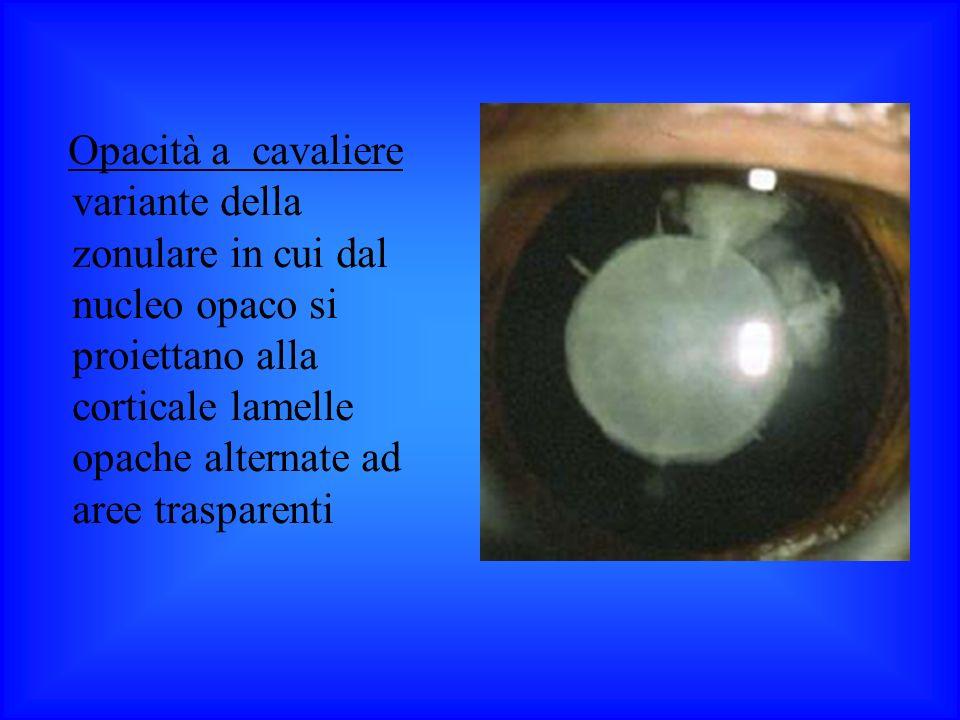 Opacità a cavaliere variante della zonulare in cui dal nucleo opaco si proiettano alla corticale lamelle opache alternate ad aree trasparenti