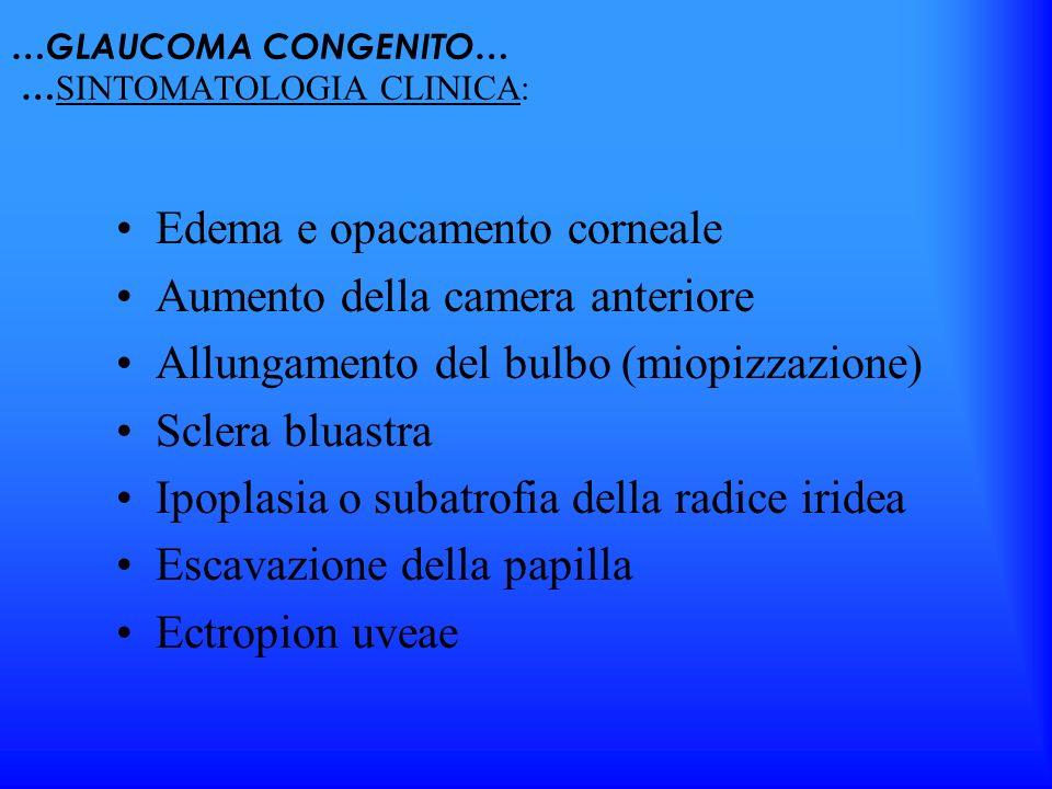 …GLAUCOMA CONGENITO… … SINTOMATOLOGIA CLINICA: Edema e opacamento corneale Aumento della camera anteriore Allungamento del bulbo (miopizzazione) Scler