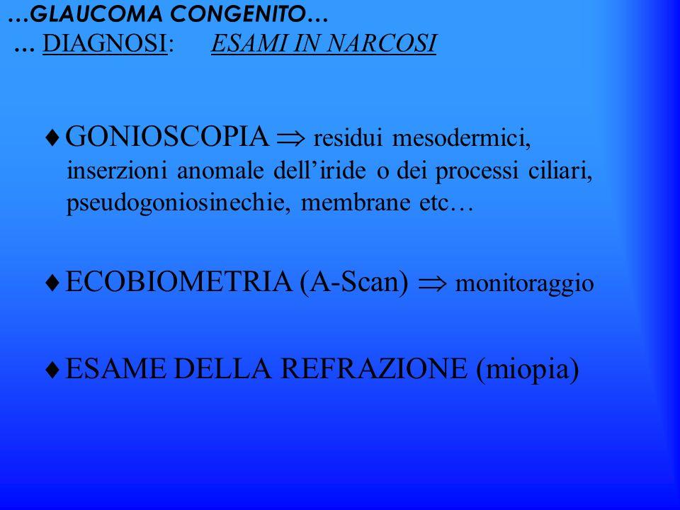 …GLAUCOMA CONGENITO… … DIAGNOSI: ESAMI IN NARCOSI GONIOSCOPIA residui mesodermici, inserzioni anomale delliride o dei processi ciliari, pseudogoniosin