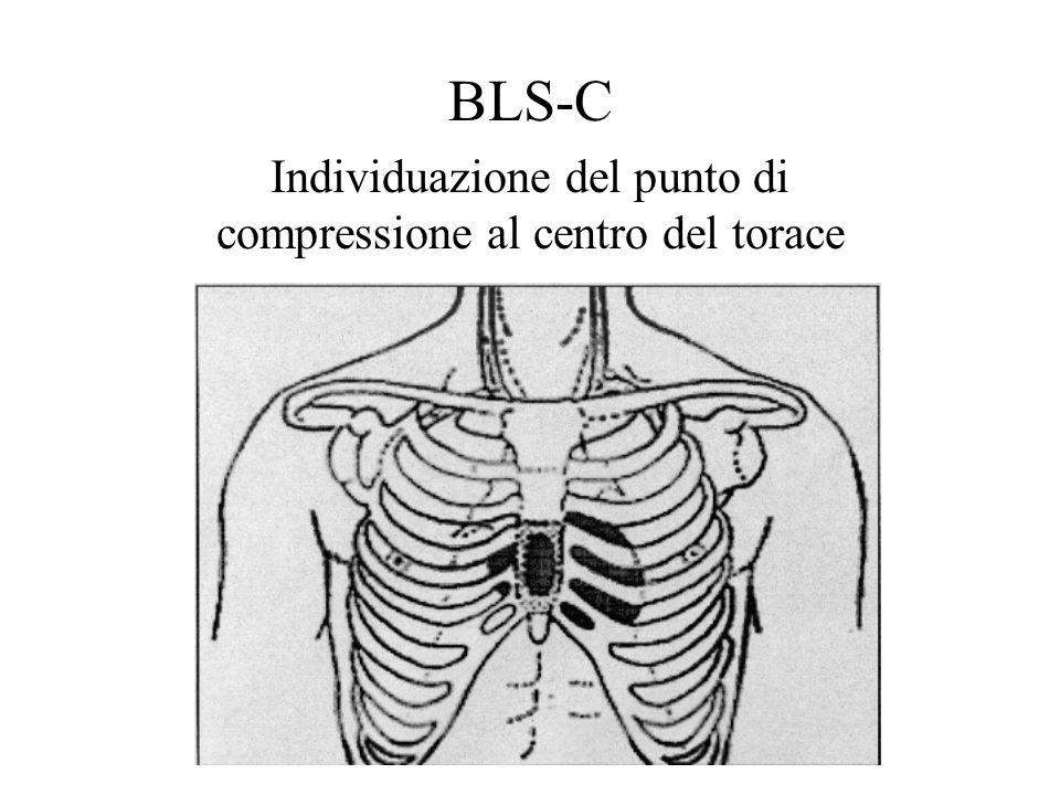 Individuazione del punto di compressione al centro del torace BLS-C