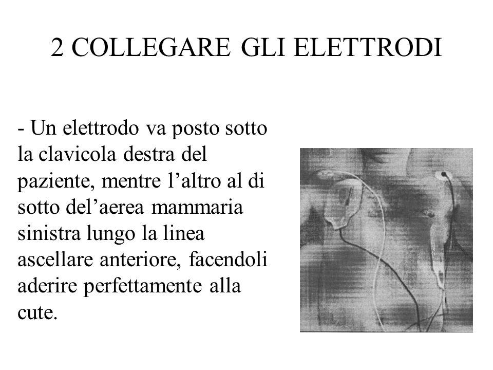 - Un elettrodo va posto sotto la clavicola destra del paziente, mentre laltro al di sotto delaerea mammaria sinistra lungo la linea ascellare anteriore, facendoli aderire perfettamente alla cute.