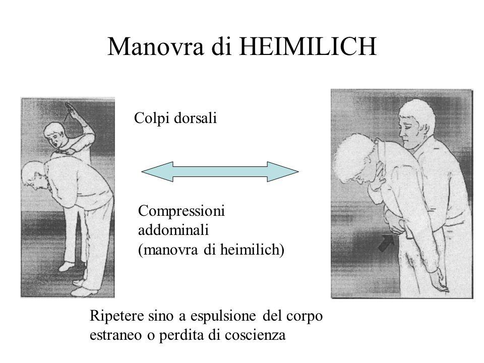Manovra di HEIMILICH Colpi dorsali Compressioni addominali (manovra di heimilich) Ripetere sino a espulsione del corpo estraneo o perdita di coscienza