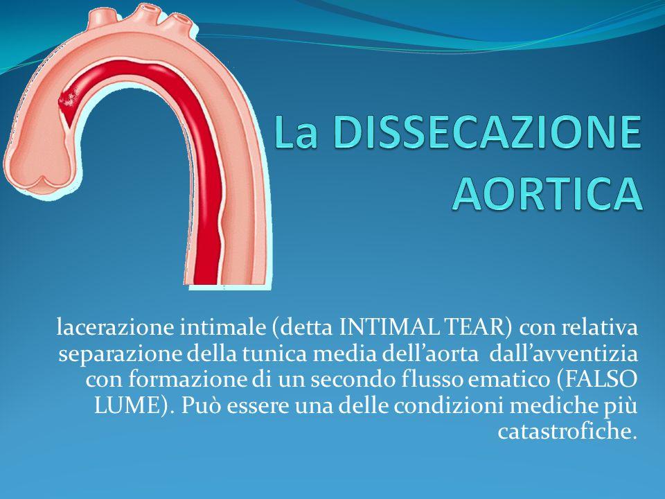 lacerazione intimale (detta INTIMAL TEAR) con relativa separazione della tunica media dellaorta dallavventizia con formazione di un secondo flusso ematico (FALSO LUME).