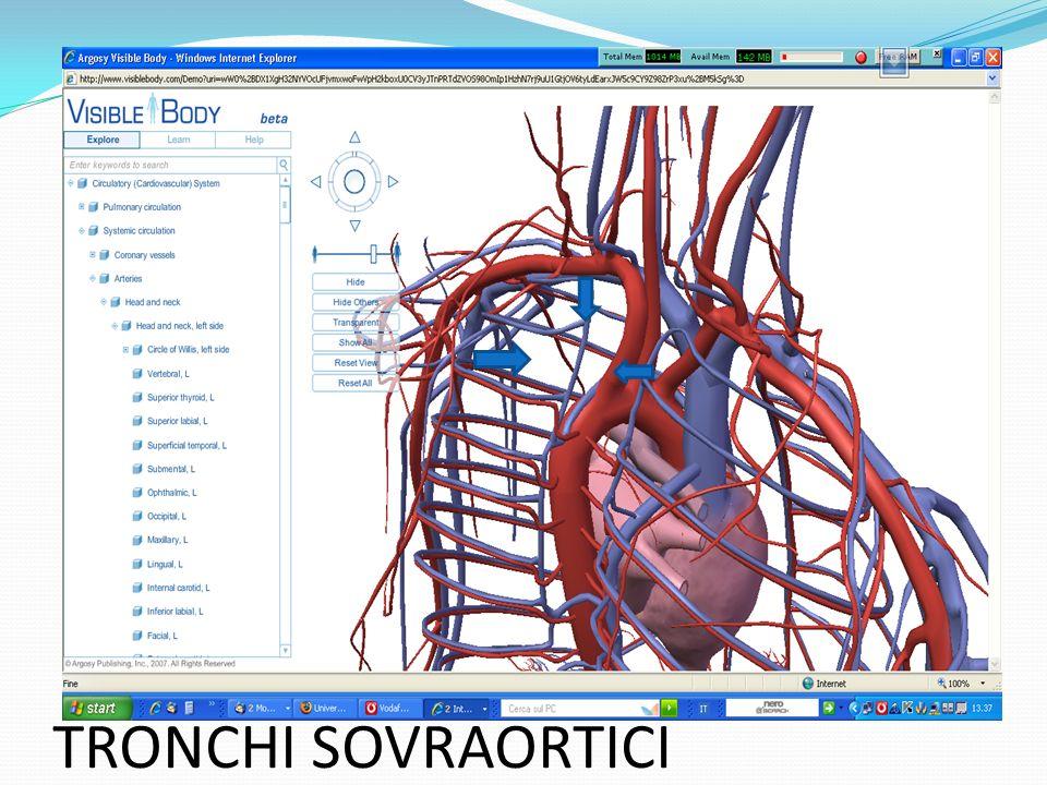 rottura con tamponamento cardiaco insufficienza cardiaca congestizia IMA MALPERFUSION