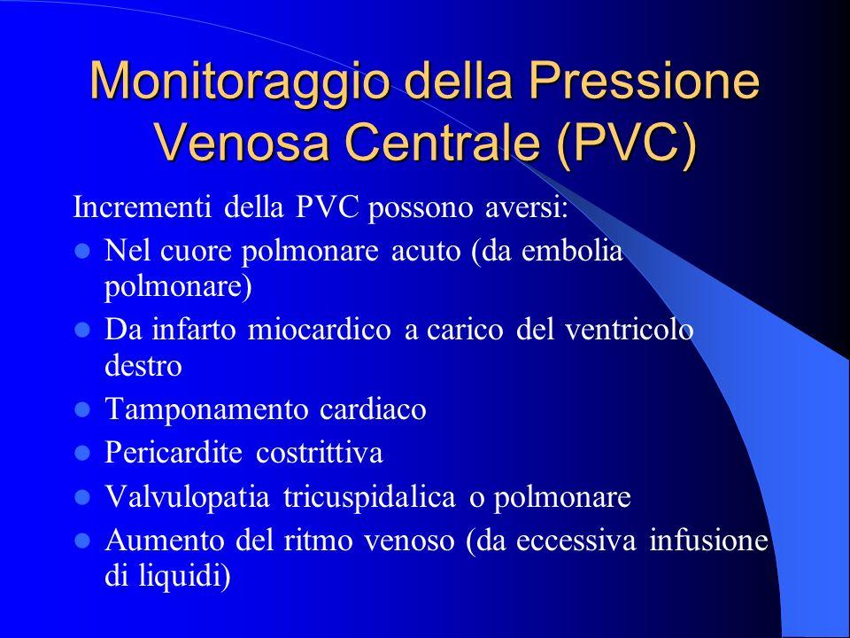 Monitoraggio della Pressione Venosa Centrale (PVC) Incrementi della PVC possono aversi: Nel cuore polmonare acuto (da embolia polmonare) Da infarto mi