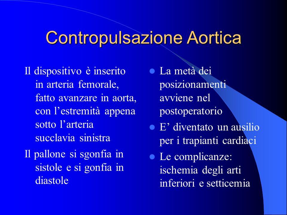 Contropulsazione Aortica Il dispositivo è inserito in arteria femorale, fatto avanzare in aorta, con lestremità appena sotto larteria succlavia sinist