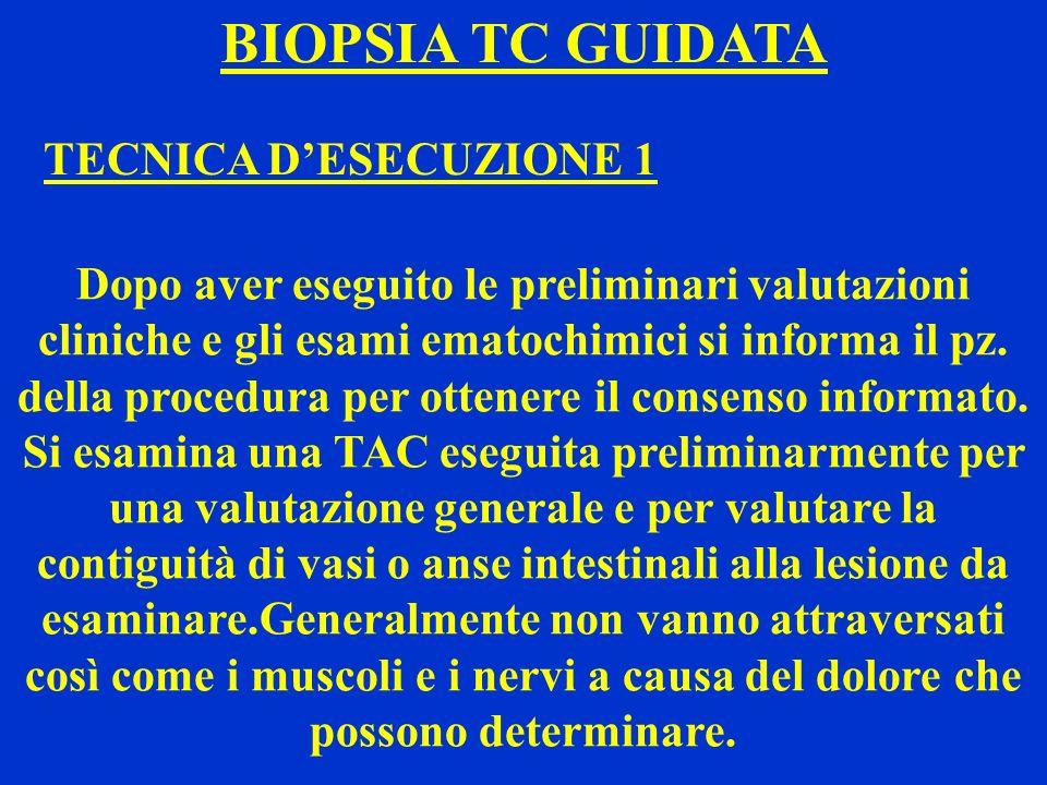 BIOPSIA TC GUIDATA TECNICA DESECUZIONE 1 Dopo aver eseguito le preliminari valutazioni cliniche e gli esami ematochimici si informa il pz. della proce