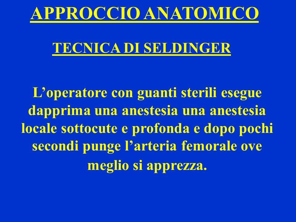 APPROCCIO ANATOMICO TECNICA DI SELDINGER Loperatore con guanti sterili esegue dapprima una anestesia una anestesia locale sottocute e profonda e dopo