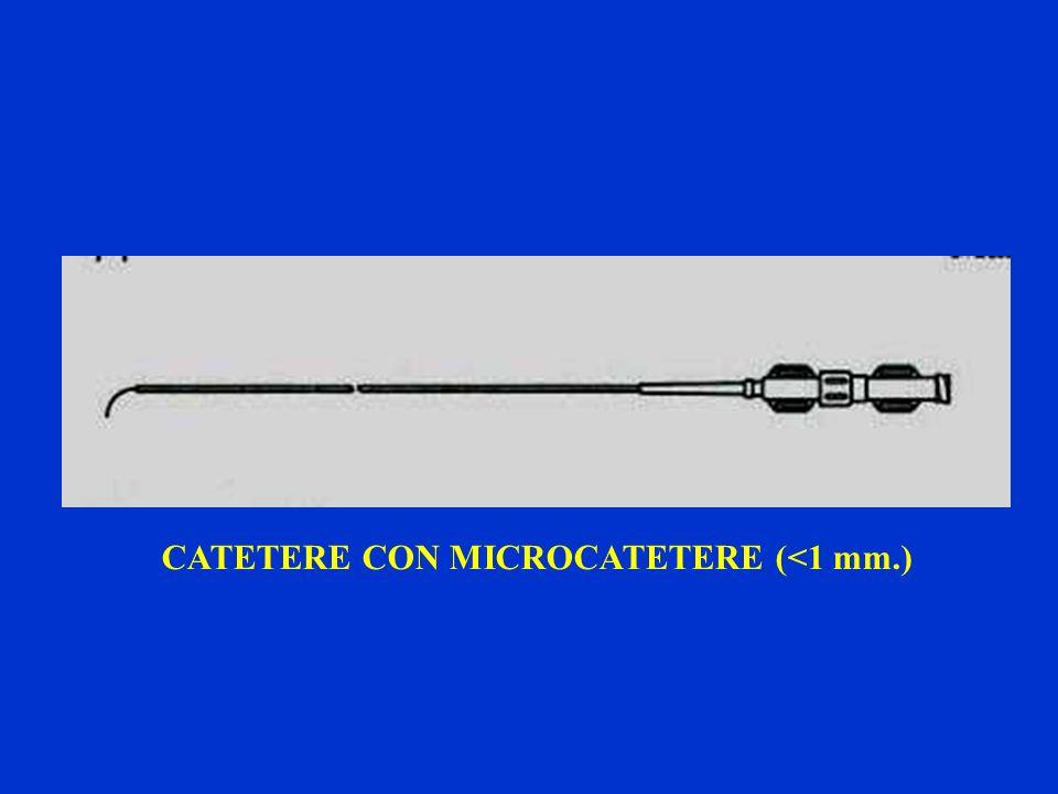 CATETERE CON MICROCATETERE (<1 mm.)
