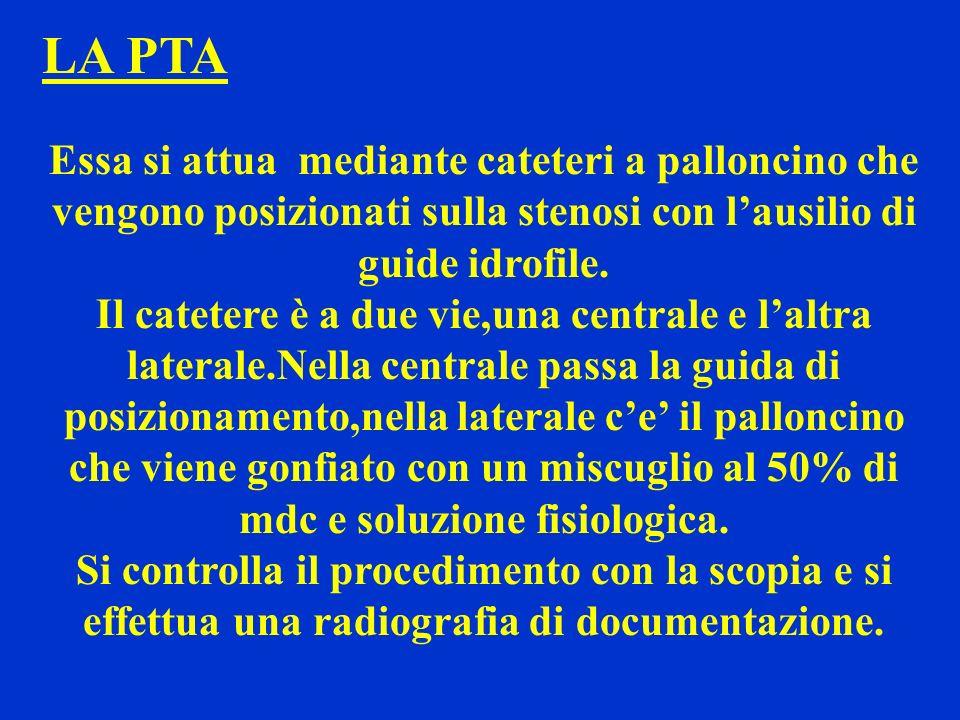 LA PTA Essa si attua mediante cateteri a palloncino che vengono posizionati sulla stenosi con lausilio di guide idrofile. Il catetere è a due vie,una