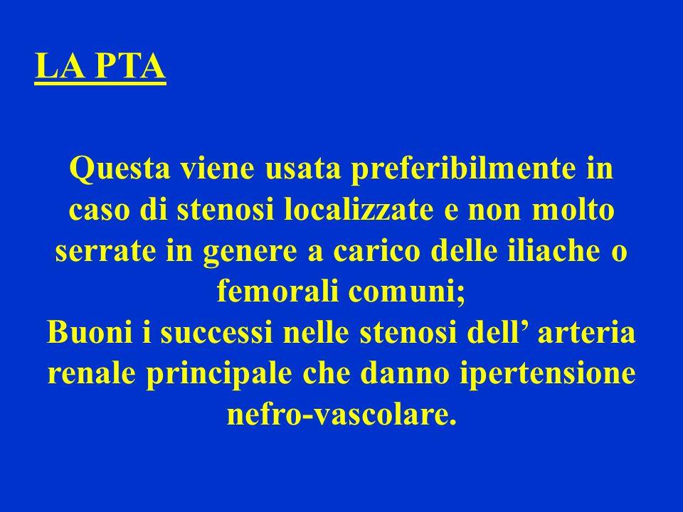LA PTA Questa viene usata preferibilmente in caso di stenosi localizzate e non molto serrate in genere a carico delle iliache o femorali comuni; Buoni