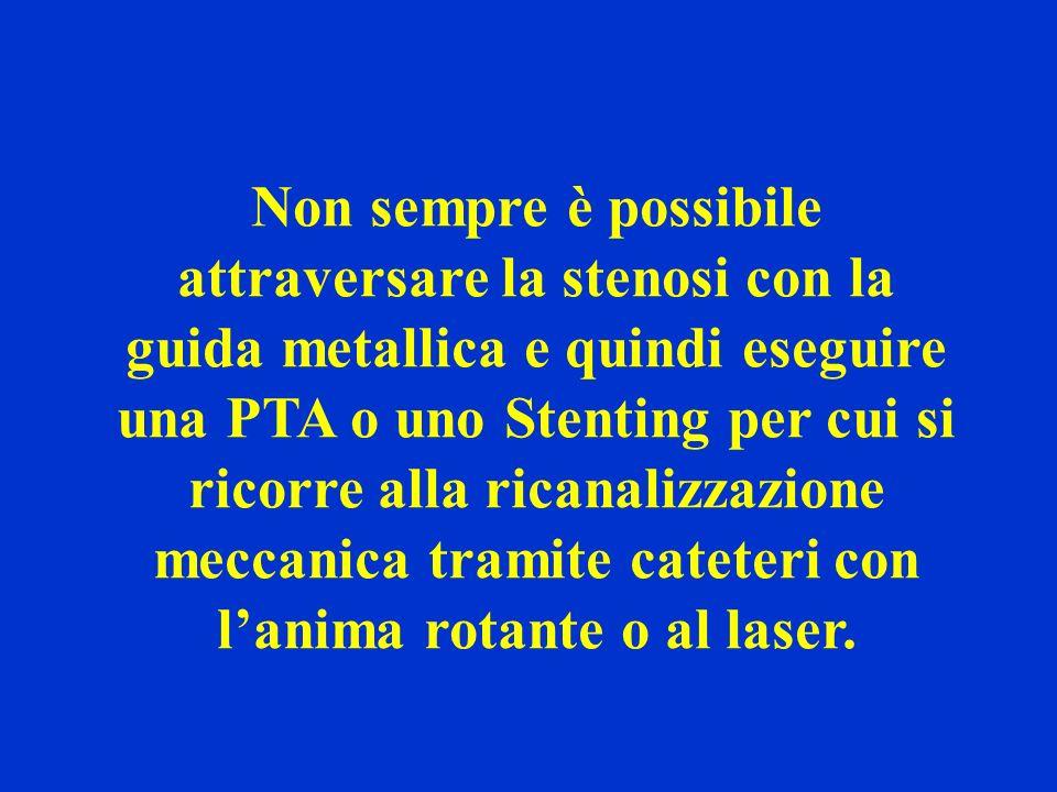 Non sempre è possibile attraversare la stenosi con la guida metallica e quindi eseguire una PTA o uno Stenting per cui si ricorre alla ricanalizzazion