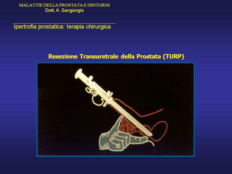 MALATTIE DELLA PROSTATA E DINTORNI Dott. A. Sangiorgio _____________________________________________ Ipertrofia prostatica: terapia chirurgica Resezio