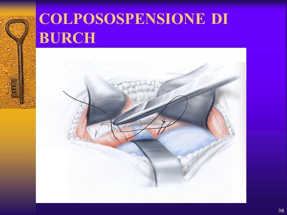 36 COLPOSOSPENSIONE DI BURCH
