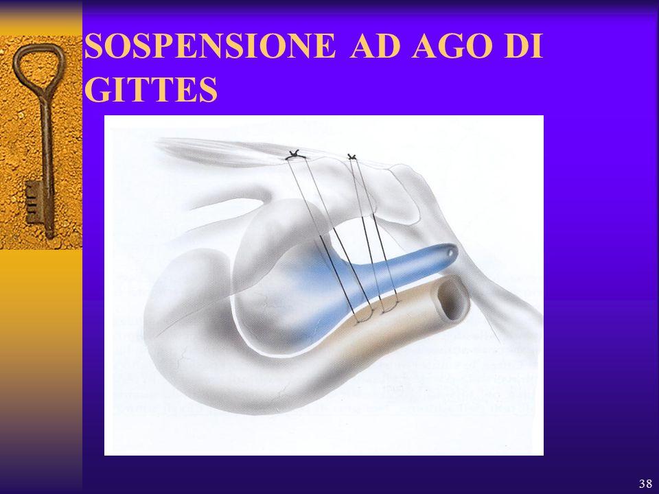 38 SOSPENSIONE AD AGO DI GITTES