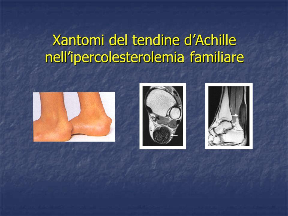 Xantomi del tendine dAchille nellipercolesterolemia familiare