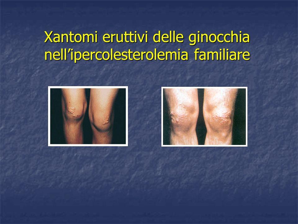 Xantomi eruttivi delle ginocchia nellipercolesterolemia familiare
