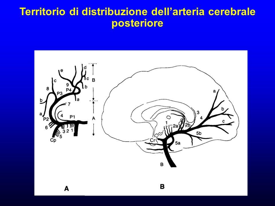 Territorio di distribuzione dellarteria cerebrale posteriore