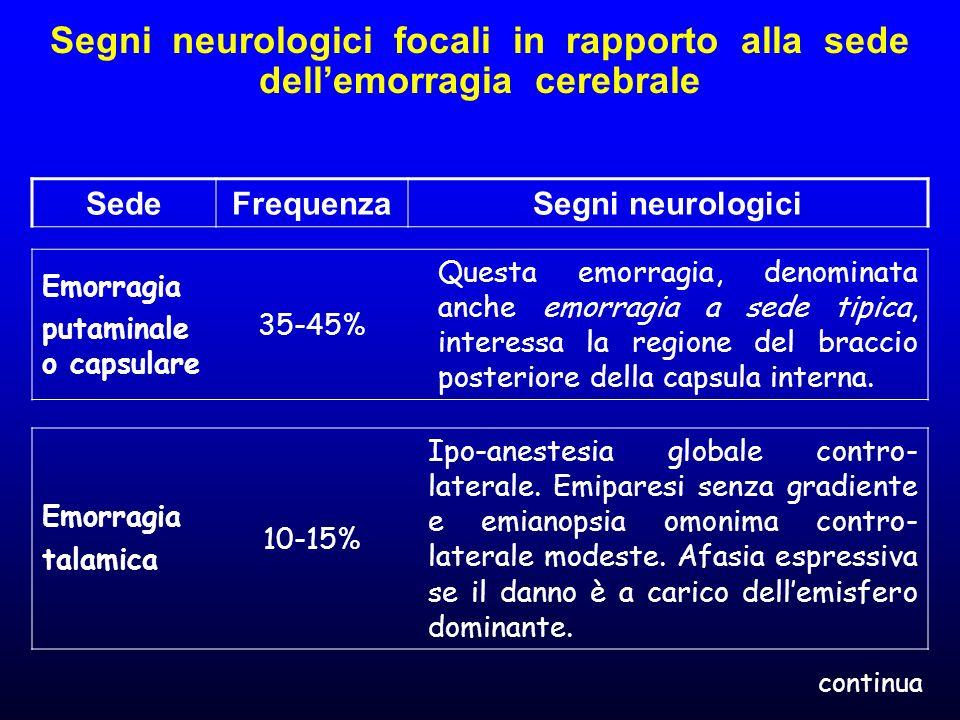 Segni neurologici focali in rapporto alla sede dellemorragia cerebrale SedeFrequenzaSegni neurologici Emorragia putaminale o capsulare 35-45% Questa e