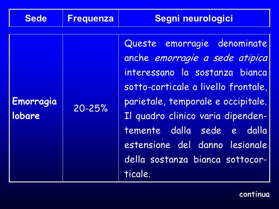 SedeFrequenzaSegni neurologici Emorragia lobare 20-25% Queste emorragie denominate anche emorragie a sede atipica interessano la sostanza bianca sotto
