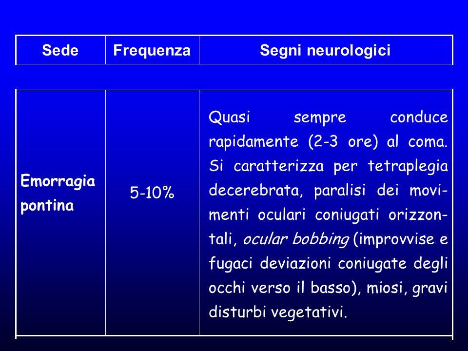 Segni neurologiciFrequenzaSede Quasi sempre conduce rapidamente (2-3 ore) al coma. Si caratterizza per tetraplegia decerebrata, paralisi dei movi- men