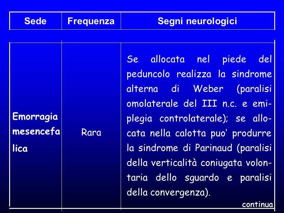 Segni neurologiciFrequenzaSede Se allocata nel piede del peduncolo realizza la sindrome alterna di Weber (paralisi omolaterale del III n.c. e emi- ple