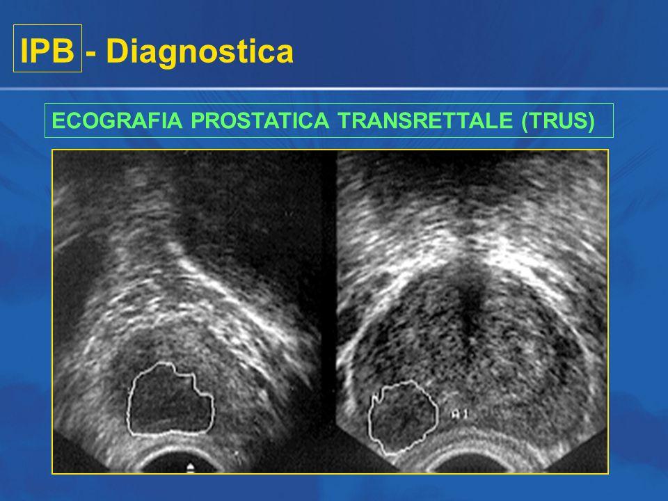 IPB - Diagnostica ECOGRAFIA PROSTATICA TRANSRETTALE (TRUS)